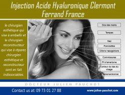 injection acide hyaluronique clermont ferrand france|http://www.julien-pauchot.com/